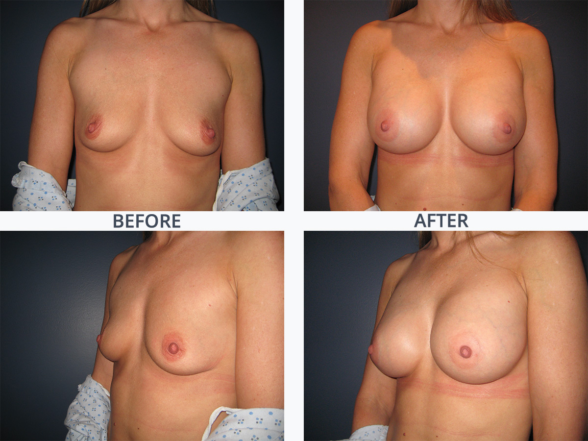 Breast Augmentation 1