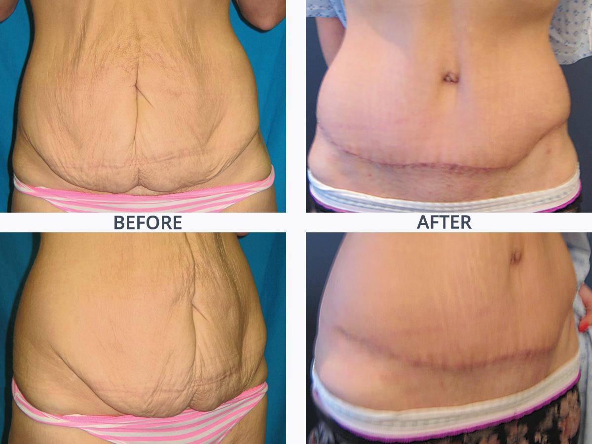 Abdominoplasty 4