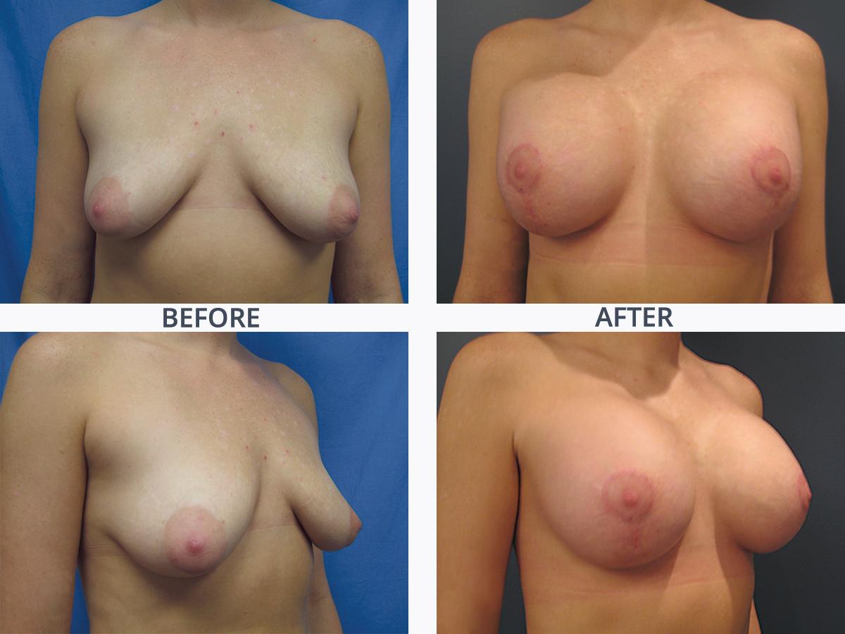 Breast Augmentation Mastopexy 1
