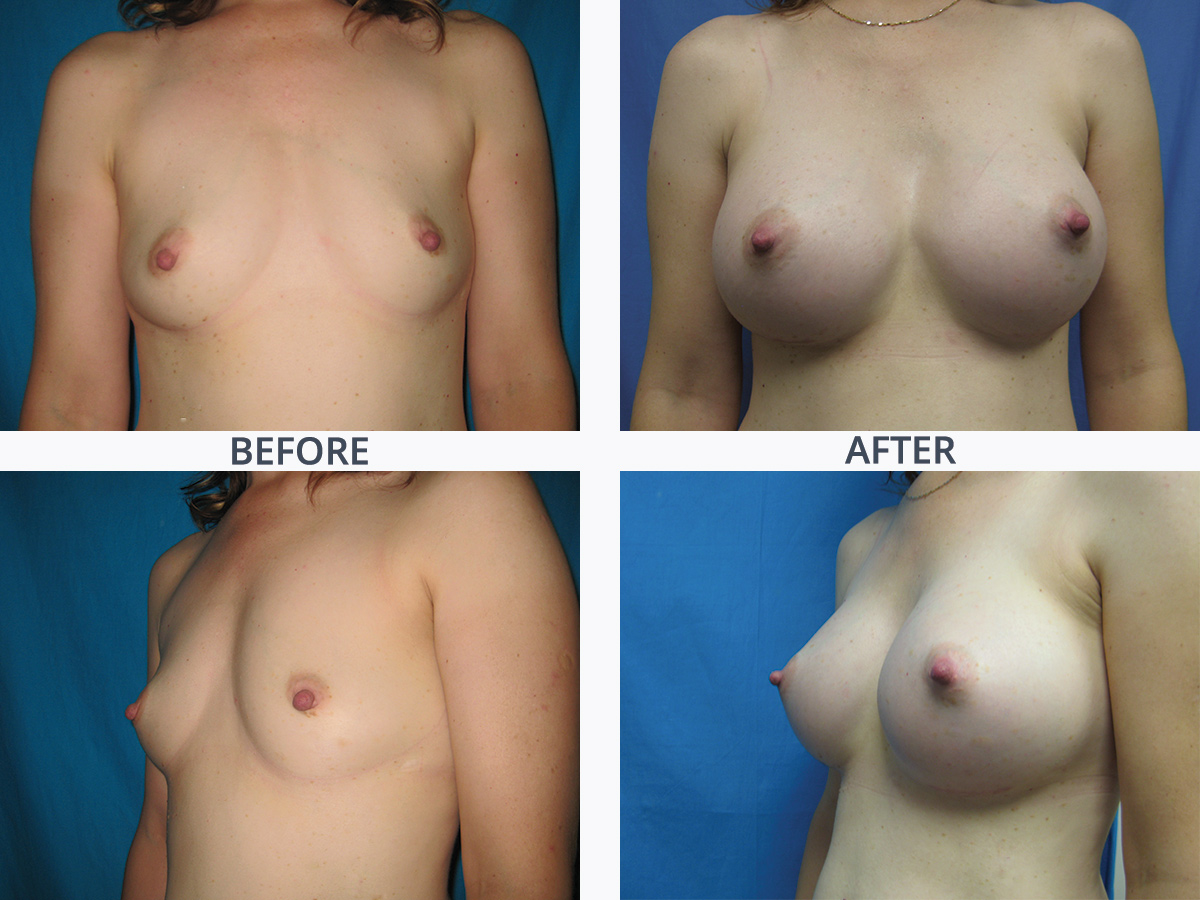 Breast Augmentation 5